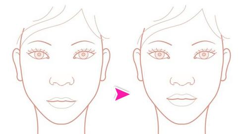 上口唇短縮(面長を治す馬面修正・鼻の下を短く)