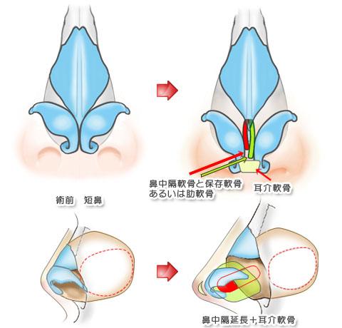 鼻中隔延長術イラスト