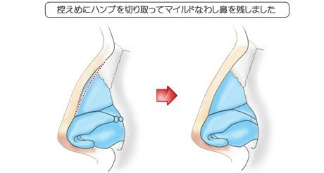 わし鼻修正の症例その1