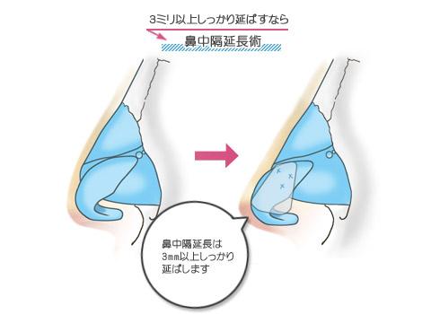 鼻先を3ミリ以上しっかり延ばさなければならない患者さんには鼻中隔延長術