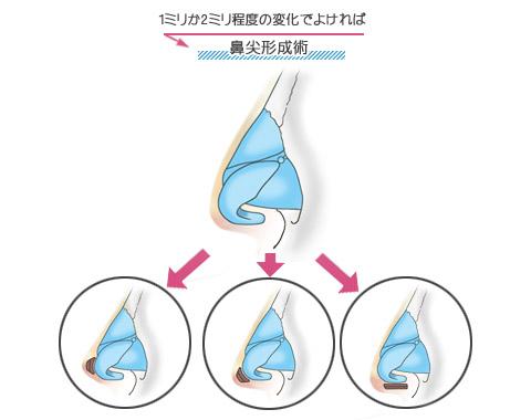 鼻先が1ミリか2ミリ程度高く、あるいは長くなれば十分な方は鼻尖形成術