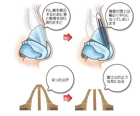 わし鼻を修正するために骨と軟骨を切り取ると、鼻筋の頂上は幅広く平らになる