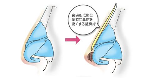 鼻尖形成術と同時に鼻筋を高くする隆鼻術