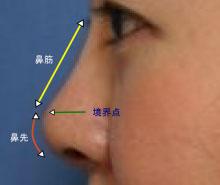 鼻中隔延長術