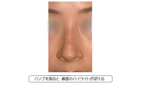 鼻筋を削って平らにすると、ハイライトが幅広くなってぼける