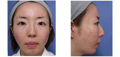 鼻筋の高さとおでこの膨らみのバランス 症例1