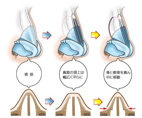 鼻筋の両サイドの骨と軟骨を真ん中に移動