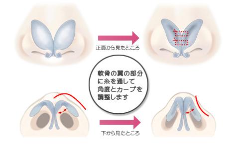 団子鼻の修正の図