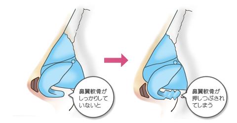 鼻尖軟骨の強度