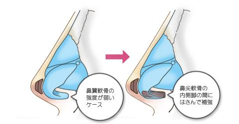 鼻翼軟骨を補強したうえで先端に軟骨を移植