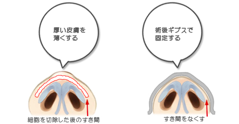 鼻尖の皮フが厚くて硬い人は、皮膚を薄くして軟骨に密着させる