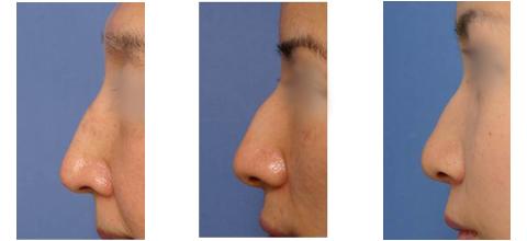 わし鼻(前方凸の鼻筋のカーブ)の好ましくない点
