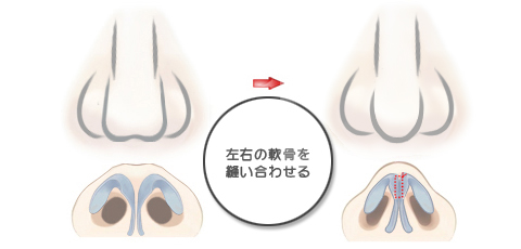 左右の鼻翼軟骨が離れている人は鼻尖の軟骨を真ん中で縫い合わせる
