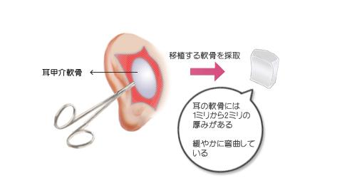 鼻尖形成に使用する軟骨