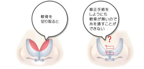 修正手術をしようにも、軟骨が無いので糸を通すことができない