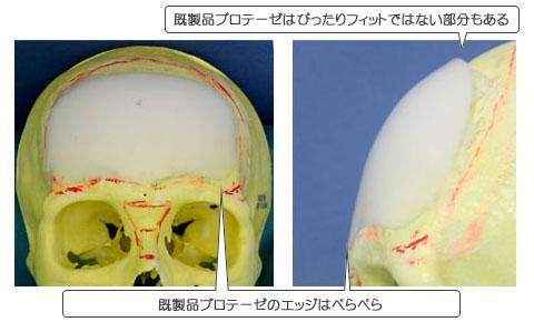 頭骨にシリコンプロテーゼ