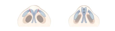 鼻尖の軟骨の上方内側の軟骨を切り取る手術法