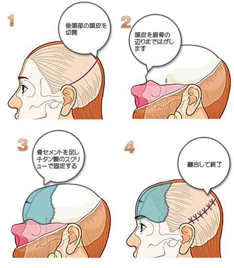 頭骨に骨セメントを挿入の流れ