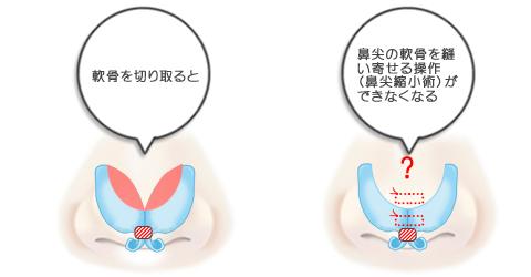 鼻尖の軟骨を縫い寄せる操作(鼻尖縮小術)ができなくなる