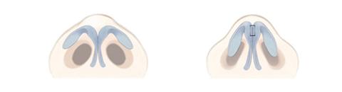 鼻尖の先端部分で左右の軟骨を縫い合わせる手術は鼻尖の先端部を細くする