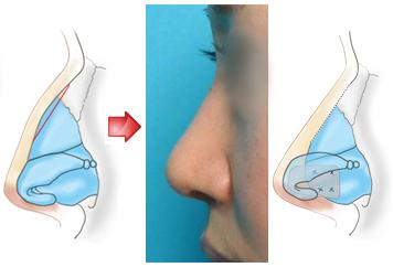 鼻先を高くするために鼻中隔延長術を併せて行いました