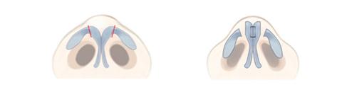 鼻尖軟骨の翼の部分を切断して、真ん中で縫い合わせる