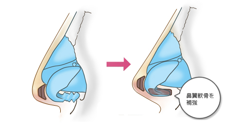 鼻翼軟骨の間に軟骨を挿入して補強します