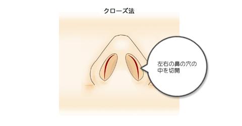 左右の鼻の穴の中を切開