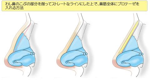 わし鼻のこぶの部分を削ってストレートなラインにした上で、鼻筋全体にプロテーゼを入れる方法