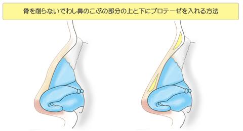 骨を削らないでわし鼻のこぶの部分の上と下にプロテーゼを入れる方法