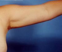 二の腕 症例after画像