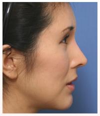 肋軟骨を用いた鼻中隔延長