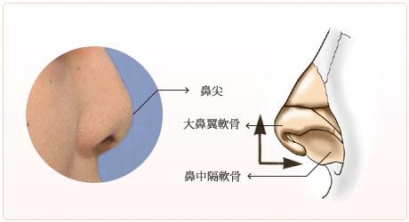 短鼻や低鼻の構造
