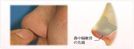 鼻中隔軟骨の位置