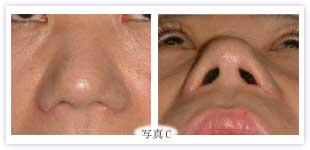鼻翼縮小 小鼻が外に張り出していないタイプに外側切除が行なわれた例