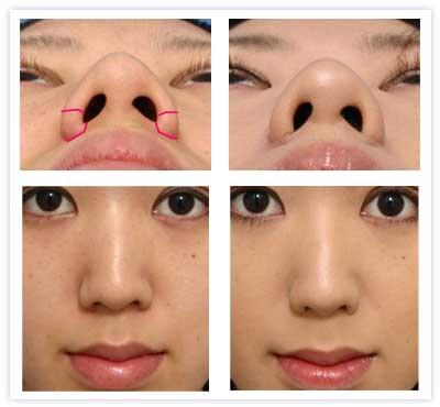 鼻翼縮小 外側切除の例
