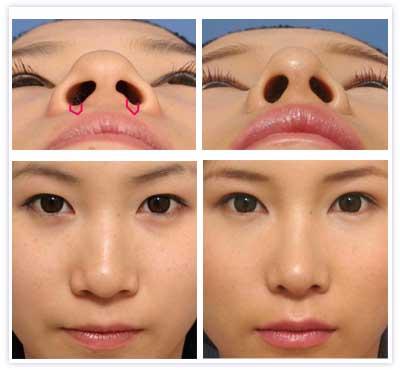 鼻翼縮小 内側切除の例