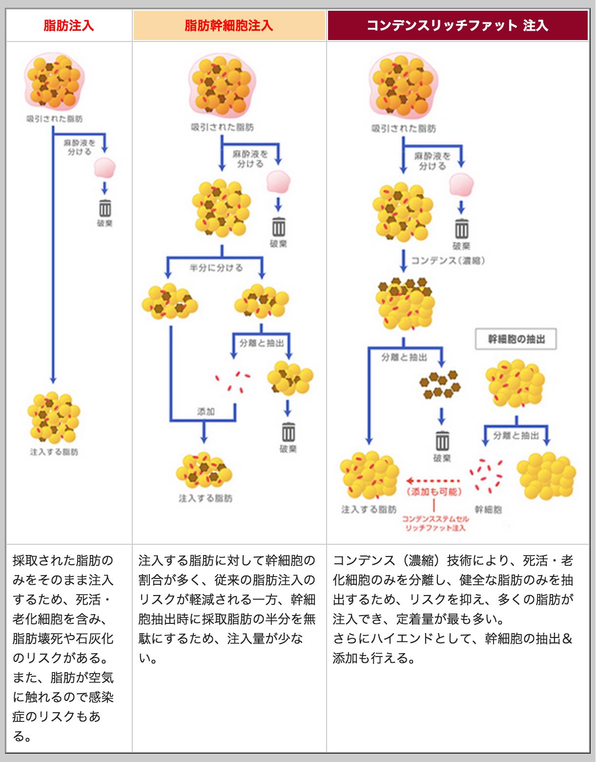 脂肪注入のプロセス比較表