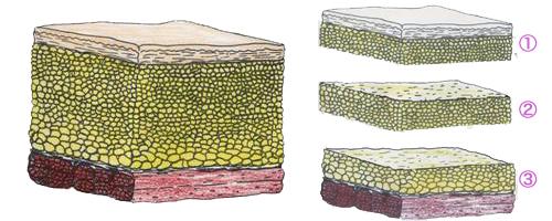 マルチプル・レイヤー・リポサクション(MLL)説明画像