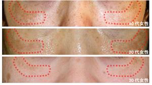 肝斑の説明画像