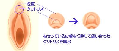 陰核(クリトリス)包皮形成
