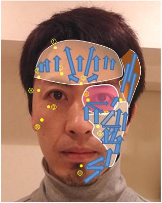 リードファインリフト顔のツボ