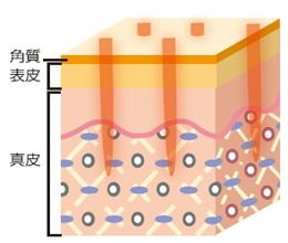 細かい点状(ドット状)にレーザの熱が加わる説明画像