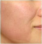 治療後の熱を帯びた肌の画像