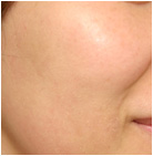 肌のターンオーバー説明の写真