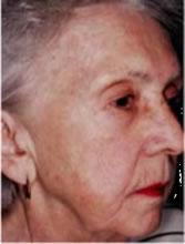 ポラリスの症例写真after