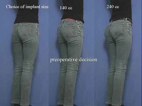 使用するプロテーゼの大きさを決める過程の説明画像