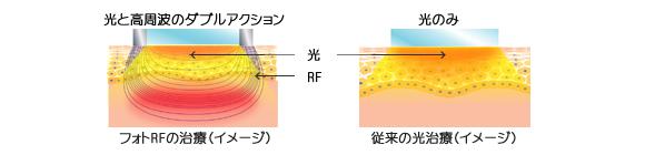 光エネルギーに関する説明