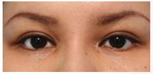 グラマラスライン 下眼瞼下制術