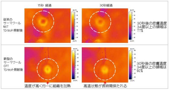 従来のサーマクールNXTと新型サーマクールCPT熱分布の比較画像